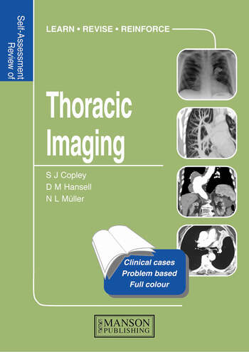 Thoracic Imaging Self-Assessment Colour Review book cover