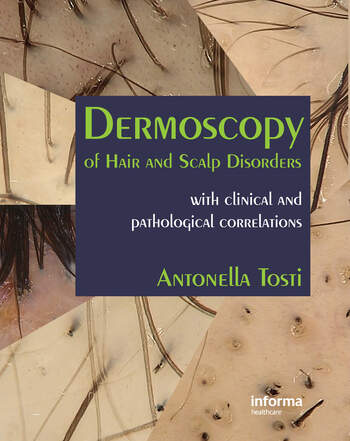Dermoscopy of Hair and Scalp Disorders With Clinical and Pathological Correlations book cover
