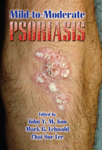 Mild-to-Moderate Psoriasis book cover