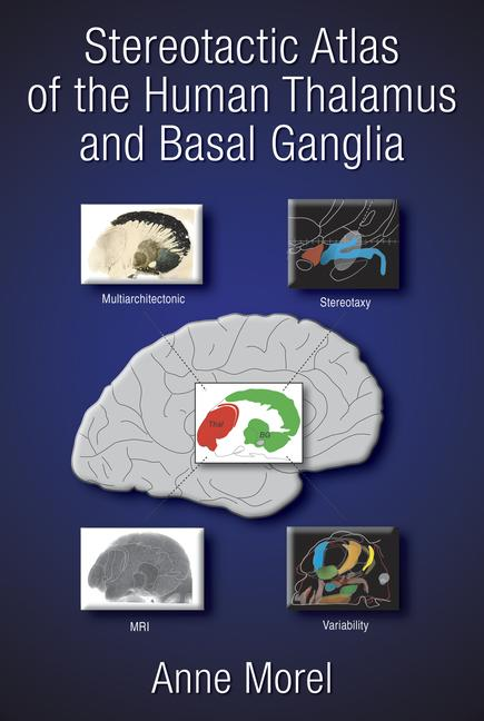 Stereotactic Atlas of the Human Thalamus and Basal Ganglia book cover