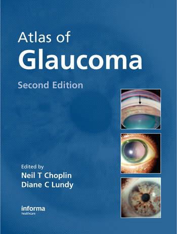 Atlas of Glaucoma book cover