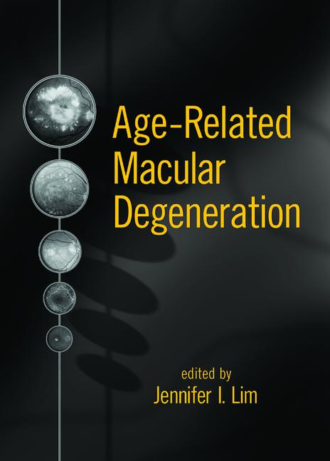 Age-Related Macular Degeneration book cover