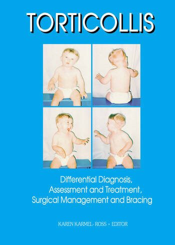 Torticollis Differential Diagnosis, Assessment and Treatment, Surgical Management and Bracing book cover