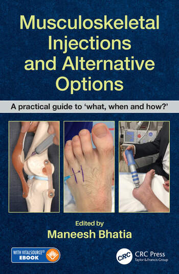 Musculoskeletal Injections and Alternative Options A practical guide to 'what, when, and how?' book cover