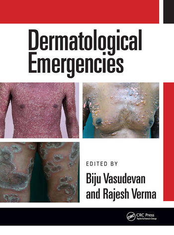 Dermatological Emergencies book cover