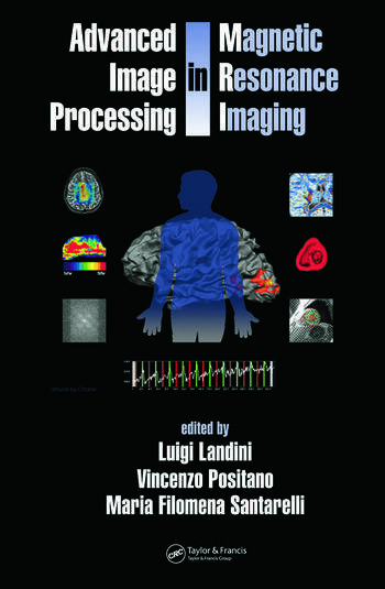 Advanced Image Processing in Magnetic Resonance Imaging book cover
