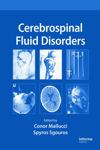 Cerebrospinal Fluid Disorders book cover