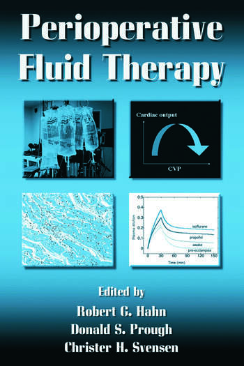Perioperative Fluid Therapy book cover