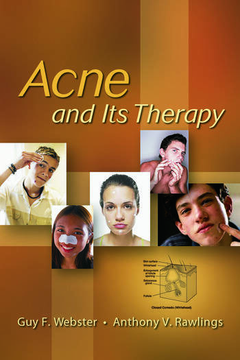 Acne and Its Therapy book cover