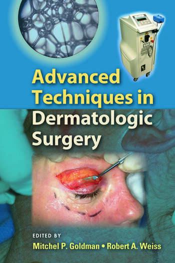 Dermatologic Surgery Book