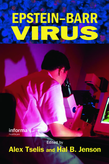 Epstein-Barr Virus book cover