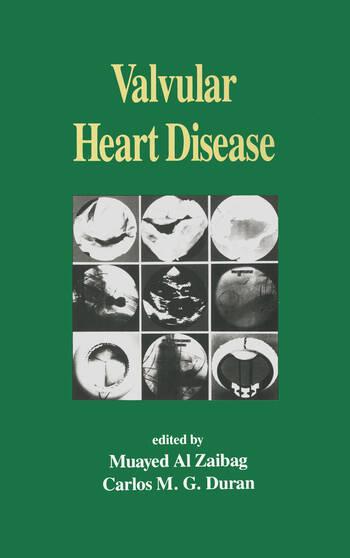 Valvular Heart Disease book cover