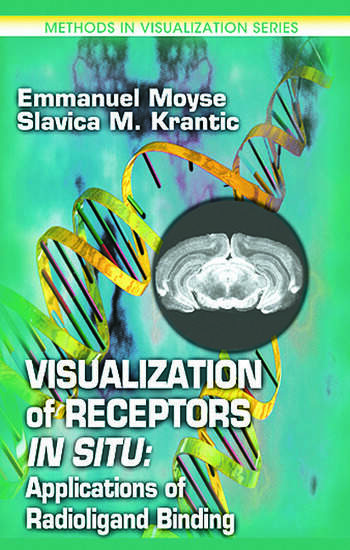 Visualization of Receptors In Situ Applications of Radioligand Binding book cover