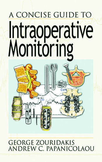 A Concise Guide to Intraoperative Monitoring book cover