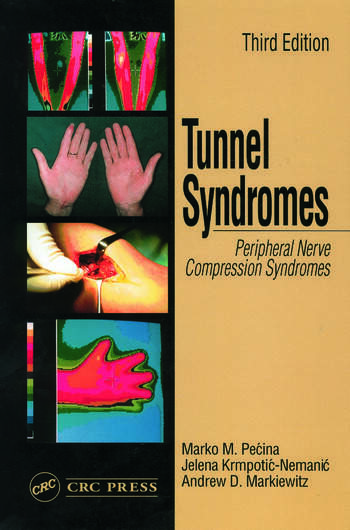 Tunnel Syndromes book cover