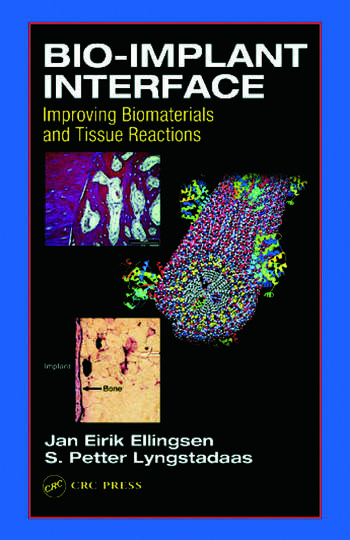Bio-Implant Interface Improving Biomaterials and Tissue Reactions book cover