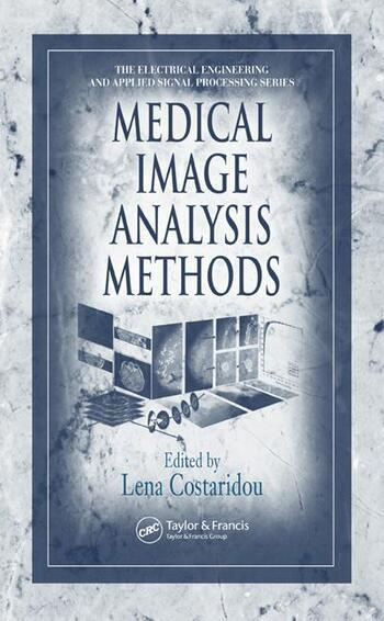 Medical Image Analysis Methods book cover