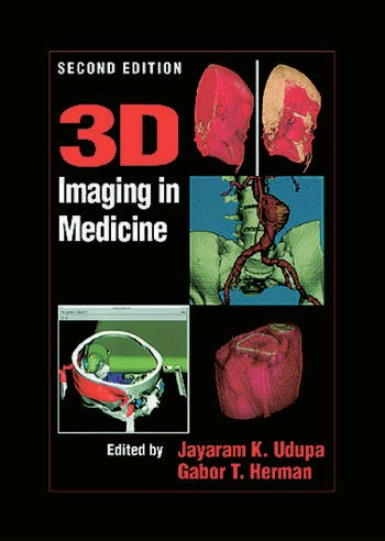 3D Imaging in Medicine, Second Edition book cover