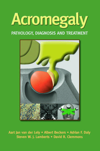 Acromegaly Pathology, Diagnosis and Treatment book cover
