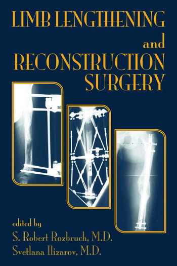 Limb Lengthening and Reconstruction Surgery book cover