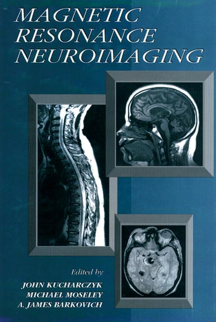 Magnetic Resonance Neuroimaging book cover