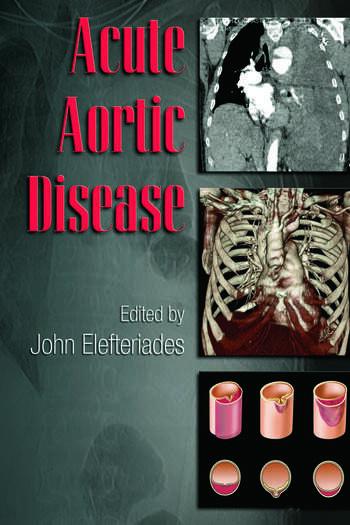 Acute Aortic Disease book cover