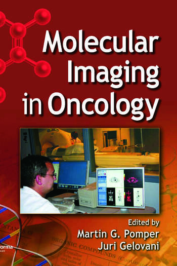 Molecular Imaging in Oncology book cover