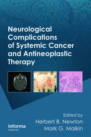 Neurological Complications of Systemic Cancer and Antineoplastic Therapy book cover