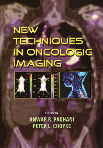 New Techniques in Oncologic Imaging book cover
