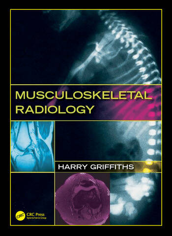 Musculoskeletal Radiology book cover