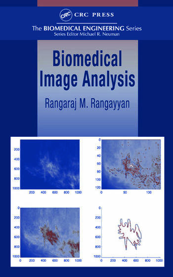 Biomedical Image Analysis book cover