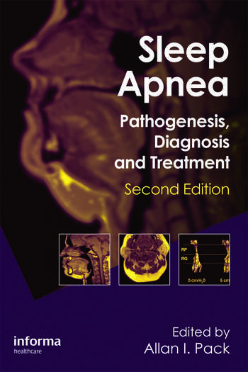 Sleep Apnea Pathogenesis, Diagnosis and Treatment book cover