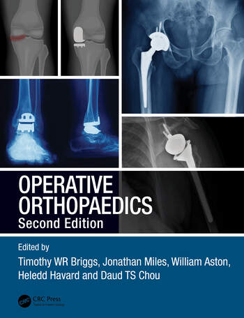 Operative Orthopaedics book cover