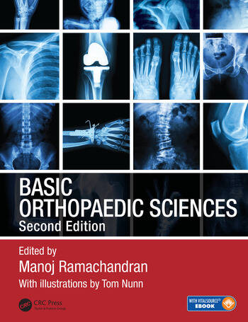 Basic Orthopaedic Sciences book cover