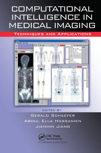 Computational Intelligence in Medical Imaging Techniques and Applications book cover