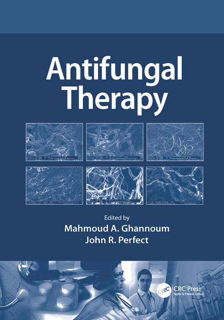 Antifungal Therapy book cover