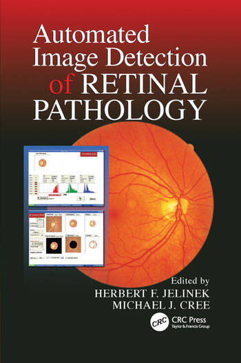 Automated Image Detection of Retinal Pathology book cover