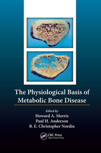 The Physiological Basis of Metabolic Bone Disease book cover