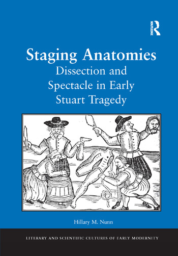 Staging Anatomies Dissection and Spectacle in Early Stuart Tragedy book cover