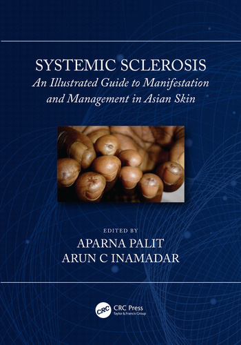 Systemic Sclerosis An Illustrated Guide to Manifestation and Management in Asian Skin book cover