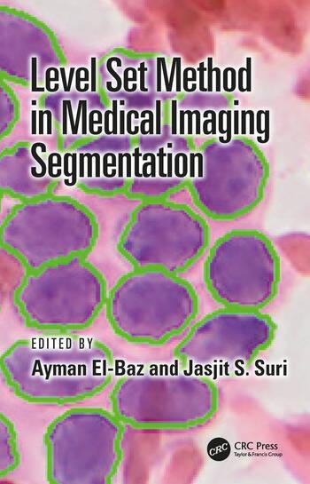 Level Set Method in Medical Imaging Segmentation book cover
