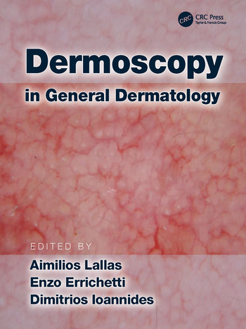 Dermoscopy in General Dermatology book cover