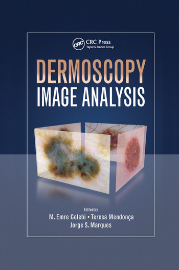 Dermoscopy Image Analysis book cover