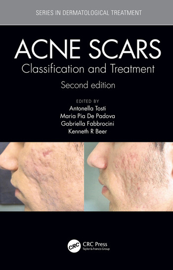 Acne Scars Classification and Treatment, Second Edition book cover