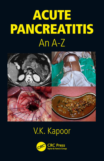 Acute Pancreatitis An A-Z book cover