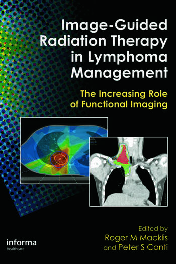 Image-Guided Radiation Therapy in Lymphoma Management The Increasing Role of Functional Imaging book cover
