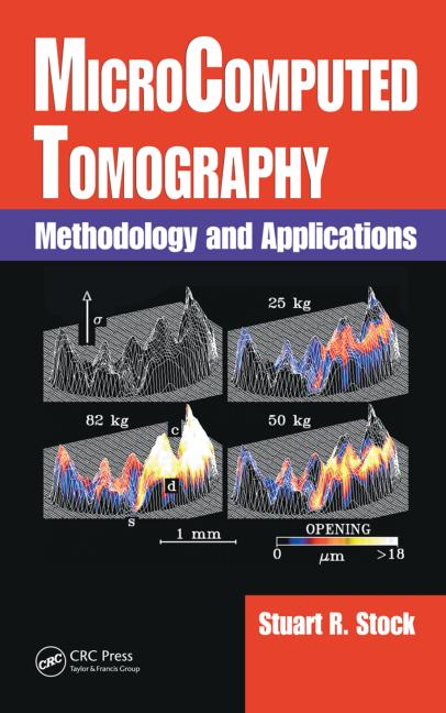 MicroComputed Tomography Methodology and Applications book cover