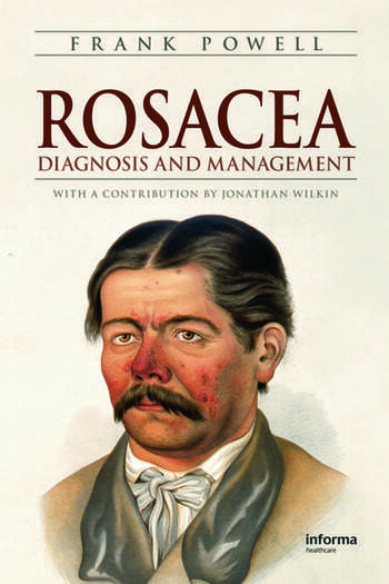 Rosacea Diagnosis and Management book cover