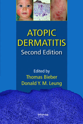 Atopic Dermatitis book cover