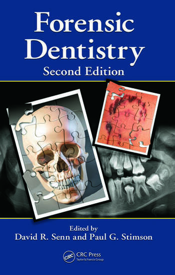 Forensic Dentistry, Second Edition book cover